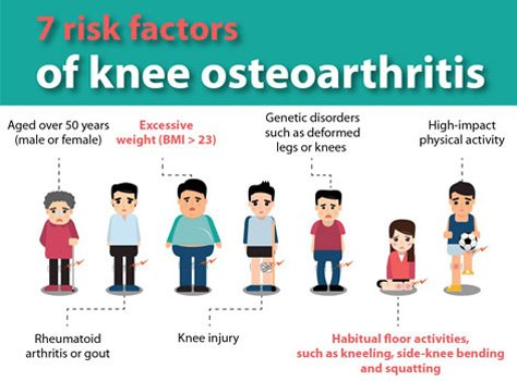 7 Risk Factors of Knee Osteoarthritis and treatment