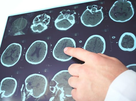 Understanding epilepsy, its dangers, symptoms