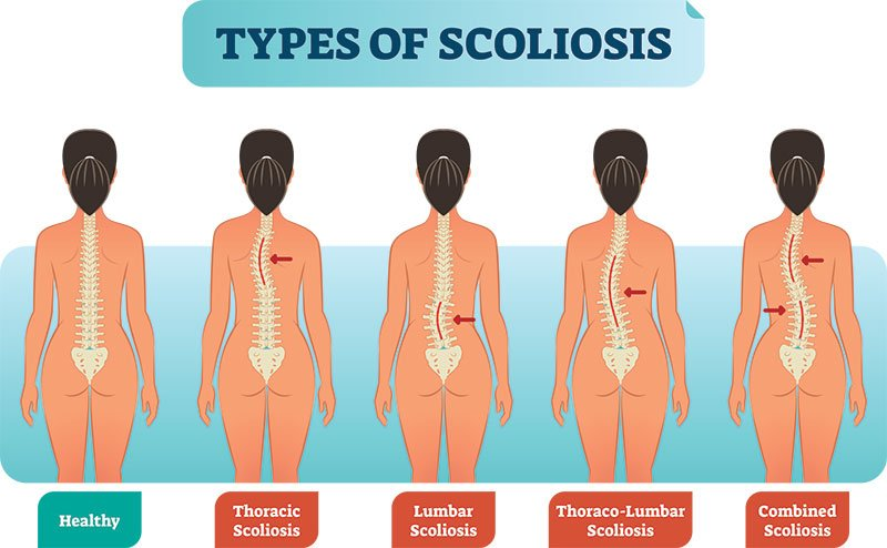 โรคกระดูกสันหลังคด คืออะไร
