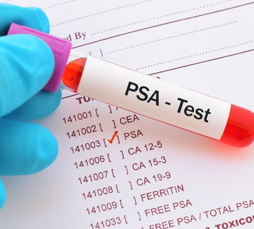 PSA Screening for Prostate Cancer: What Men Need to Know