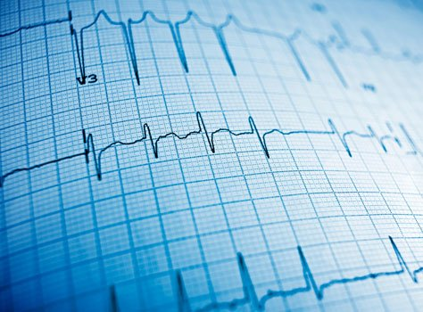 Cardiac Arrhythmia Shouldn