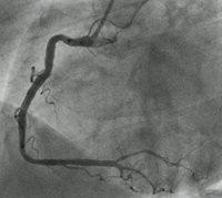blocked coronary arteries