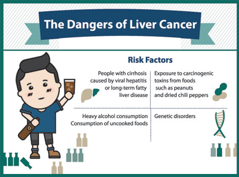 The 4 risk factors and 5 ways to prevent liver cancer
