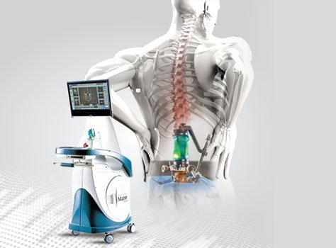 Robot-Assisted Spine Surgery – Extreme precision, Faster recovery