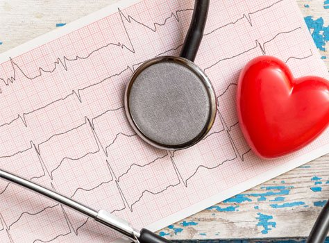 CardioInsight: A New Way to Diagnose Cardiac Arrhythmia