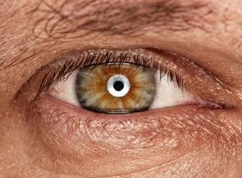 Eye Diseases of the Elderly