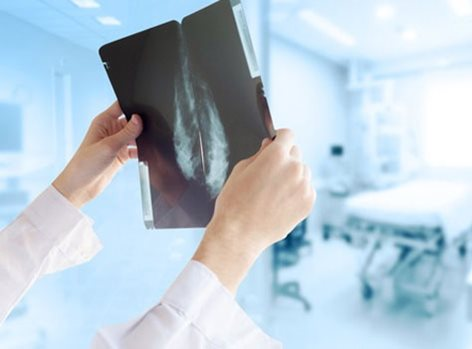 Mammograms are used to check for breast cancer