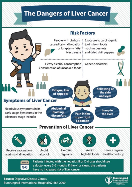 liver cancer symptoms risk and prevention infographic
