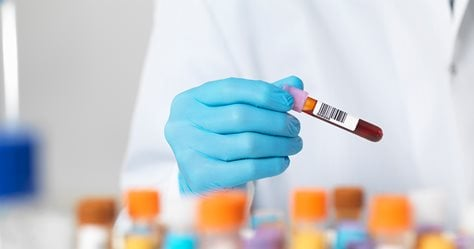 PRP Explained: Healing Injuries with Platelet-Rich Plasma Therapy