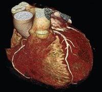 Coronary Computed Tomographic Angiography
