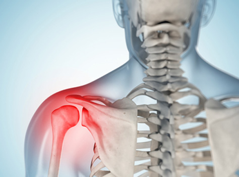 Get Help With Painful Shoulder Muscle and Tendon Tears