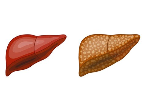 Multiple Reasons Cause Nonalcoholic Liver Cirrhosis