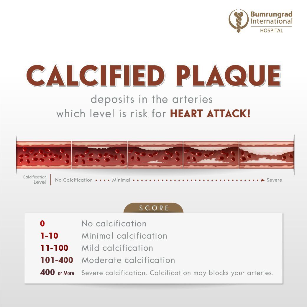 Layout-Calcium-Scoring-CT-SocialPost_1040x1040-EN.jpg