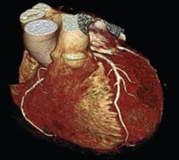 Coronary CT Angiography