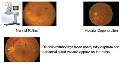 complete-eye-examination-Diabetic retinopathy