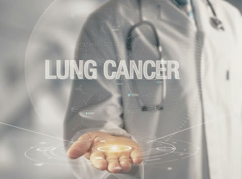 Targeted Therapy: A New Hope for Lung Cancer Patients
