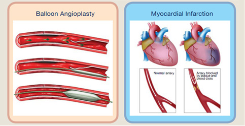 balloon angioplasty and myocardial infaction